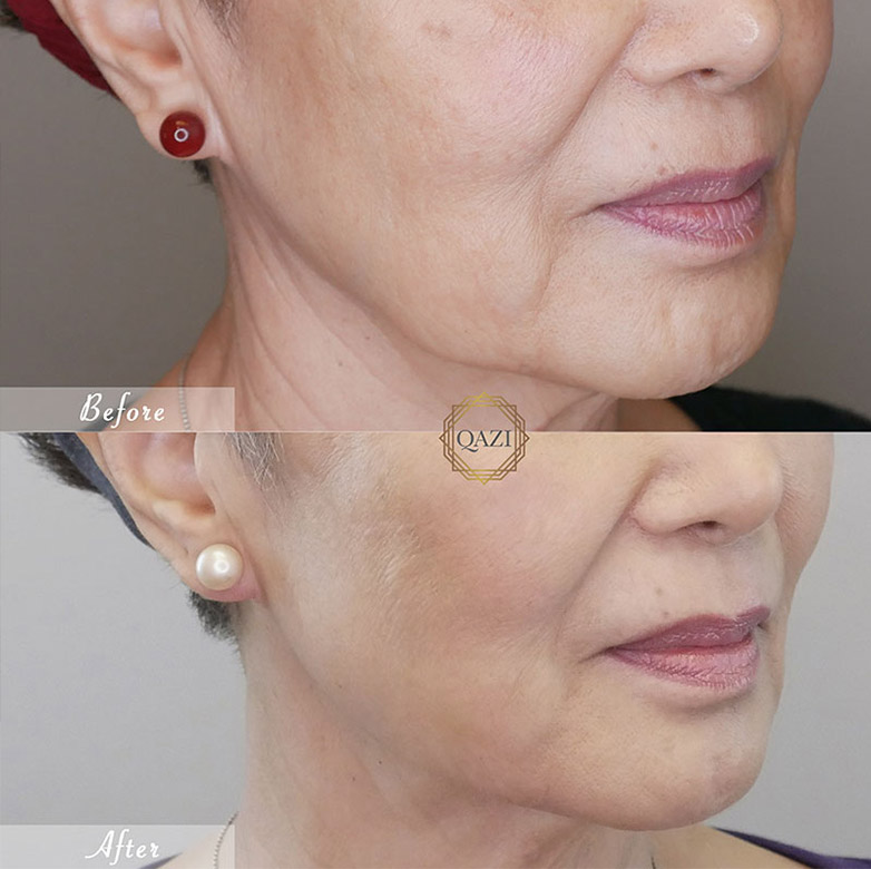 5 Reasons to Try Jaw Slimming With Botox | Qazi Cosmetic ...